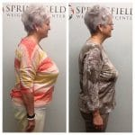 Springfield IL Weight Loss Before and After Springfield Weight Loss Center